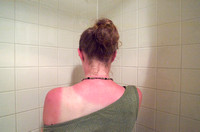 Woman With Severe Sunburn